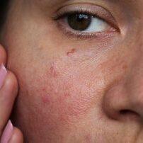 burst capillaries on the girl's face